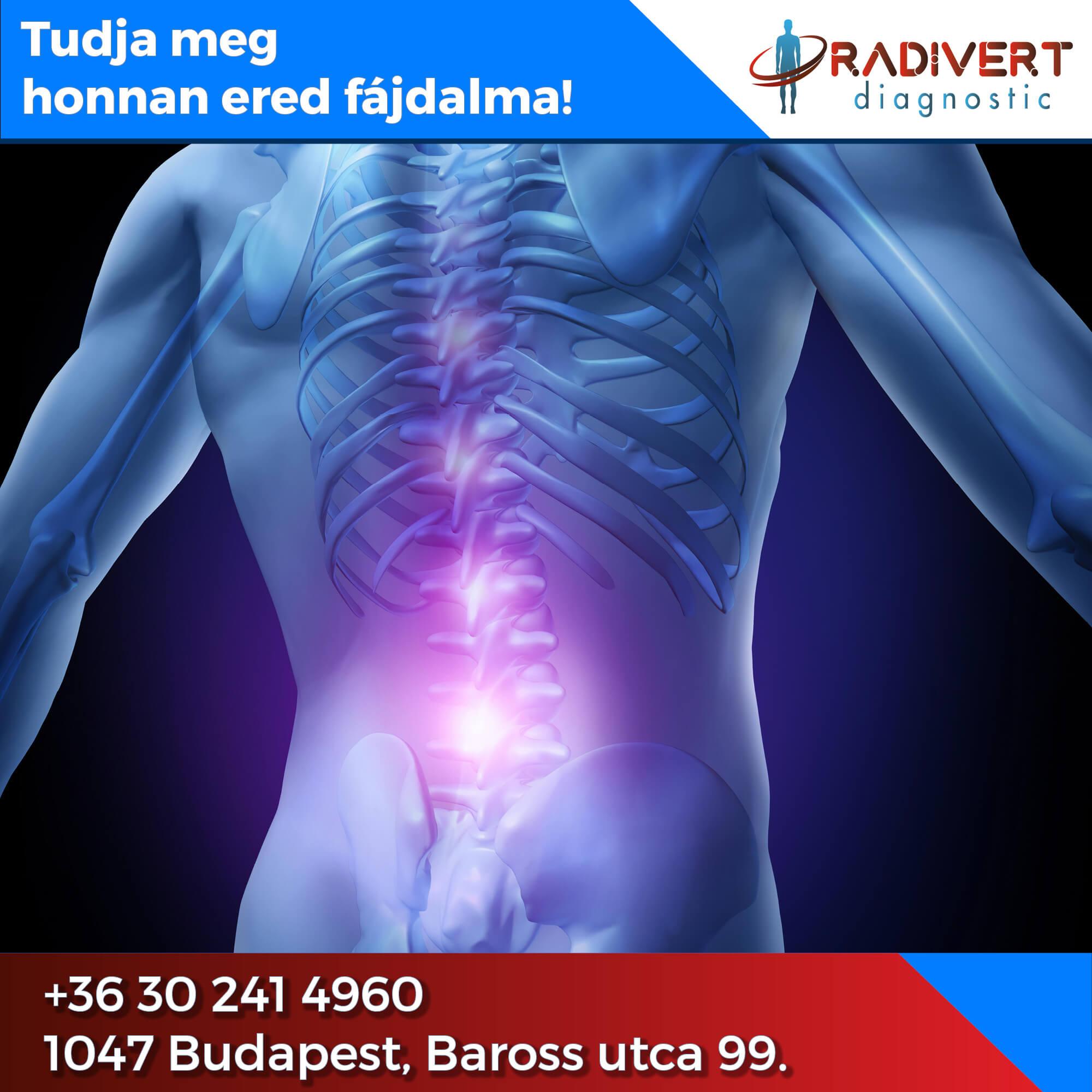 A gerinc MRI vizsgálat pontos és részletes képet ad a gerinc környékén, vagy az abban található elváltozásokról